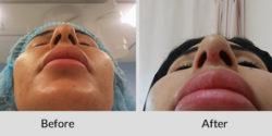 Tip rhinoplasty
