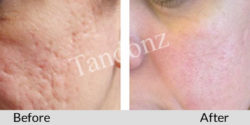 acne_scars2-big