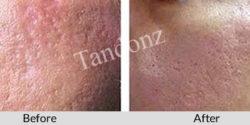 acne_scars3-big