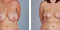 breast_reduction1-big