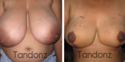 breast_reduction2-big