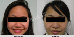 buccal_fat_pad_removal1-big