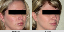 buccal_fat_pad_removal2-big