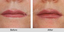 lip_augmentation1-big