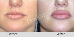 lip_augmentation3-big