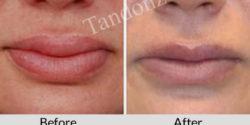 lip_reduction1-big