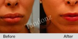 lip_reduction2-big
