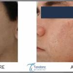 Acne-scar-treatment-by-IPL
