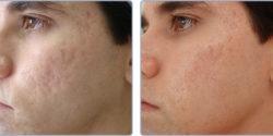 Acne scar treatment by IPL