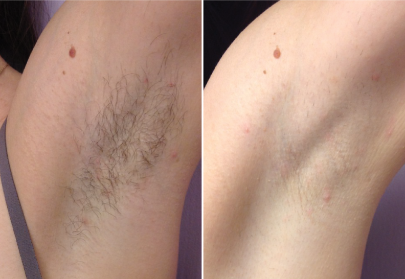 Axillary Hair removal by Diode