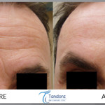 Combination of filler and botox 1