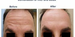 Combination of filler and botox