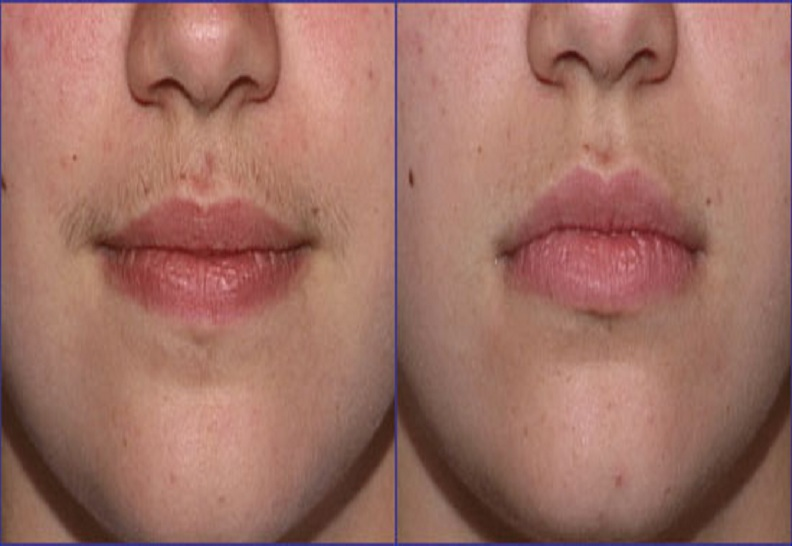 Facial Hair Reduction by Diode Laser