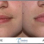 Facial-Hair-Reduction-by-Diode-Laser