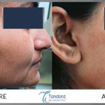 Facial--Hair-Removal-by-Diode-Laser