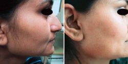 Facial  Hair Removal by Diode Laser