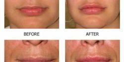 Fiiler-lips-3-3-250x125