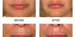 Fiiler lips 3