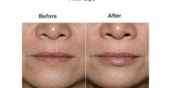 Filler-lips-3-250x125