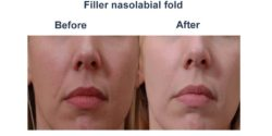 Filler-nasolabial-fold-1-1-250x125