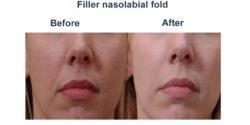Filler nasolabial fold-