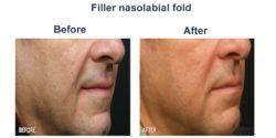 Filler nasolabial fold