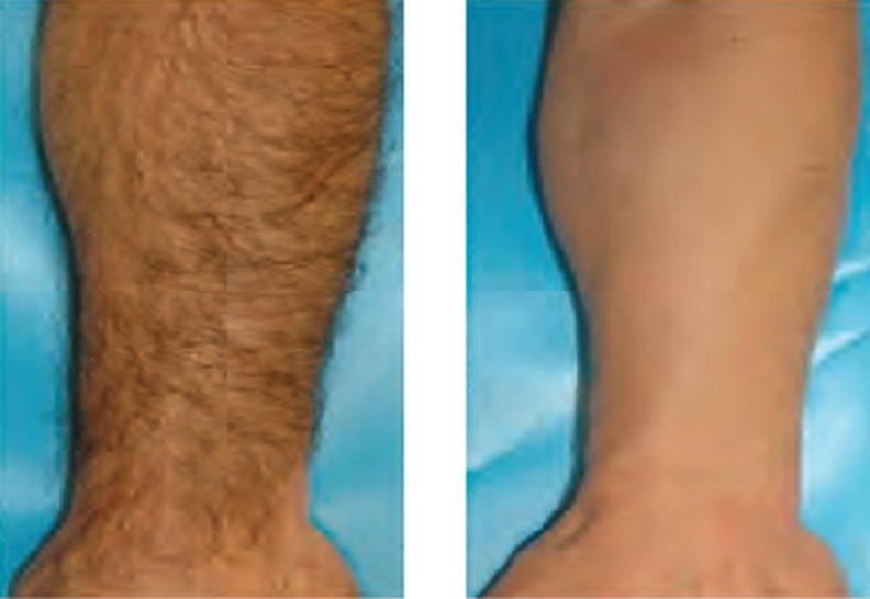 Leg Hair Reduction by Diode