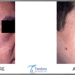 Nevus-of-OTA-treated-by-Q-Switched-ND-Yag