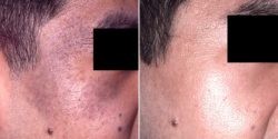 Nevus of OTA treated by Q Switched ND Yag