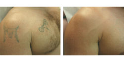 Tattoo removal by Q  switcehed ND YAg