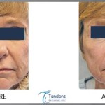 Wrinkle-reduction-by-CO2-LAser