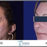 acne-fractional-CO2-for-acne-scars
