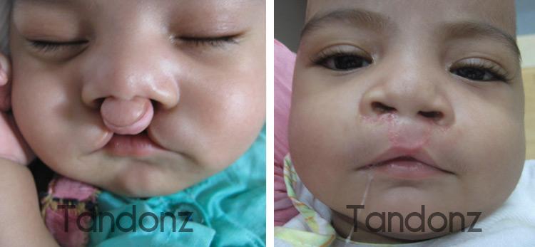 cleft_lip1-big