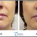 dermabrasion-before-and-after