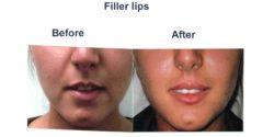 filler-lips--