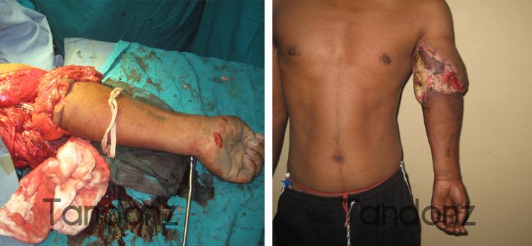 microvascular_surgery1-big