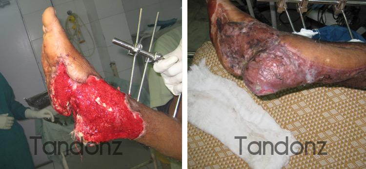 microvascular_surgery2-big