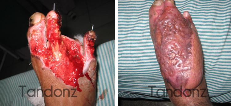 microvascular_surgery3-big