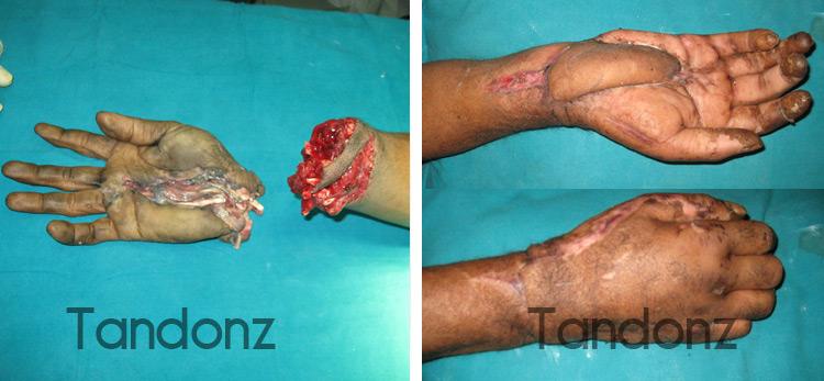 microvascular_surgery4-big
