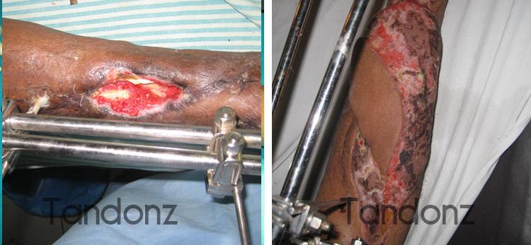 microvascular_surgery5-big