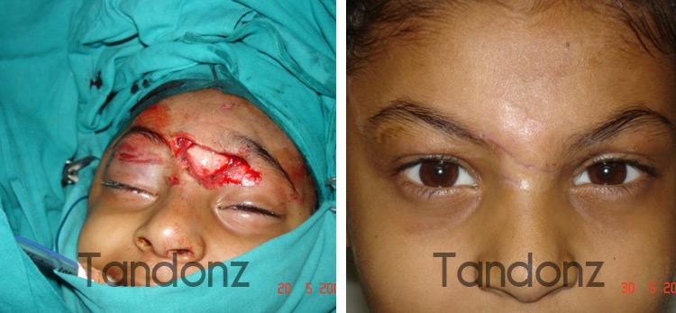 skin_tissue_injury1-big