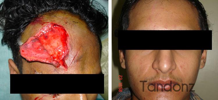 skin_tissue_injury2-big
