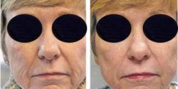 Wrinkle reduction by CO2 LAser