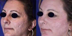 acne fractional CO2 for acne scars